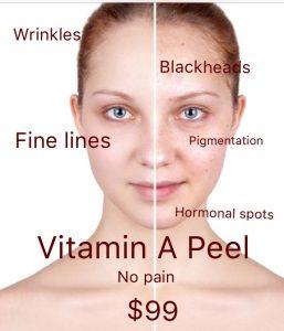 Vitamin A Peel | Perfect Brow Design